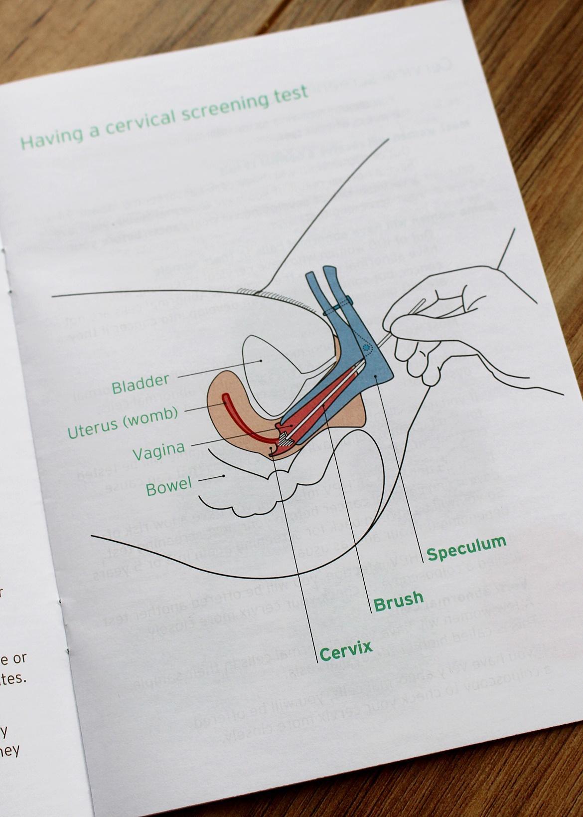 Cervical Smear Test Cytologia W Anglii Mama W Uk Blog O życiu W Uk